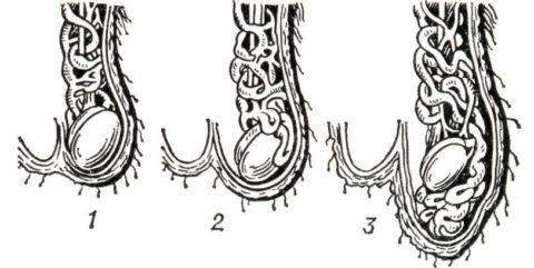 Схематическое изображение трех степеней развития болезни