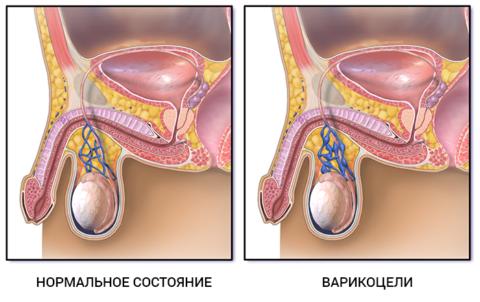 Схематическое изображение вен мошонки: здоровых и при варикоцеле