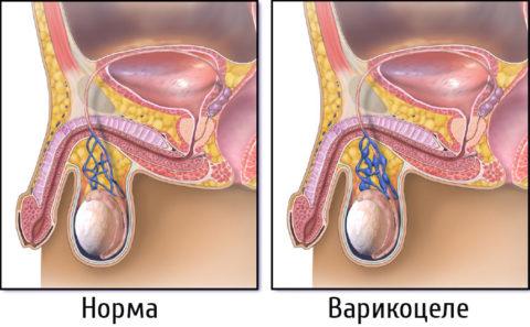 Схематическое изображение вен в нормальном и воспаленном состоянии