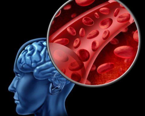 Недостаточность кровоснабжения может привести к серьезным проблемам