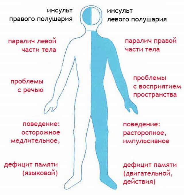 Симптомы ишемии головного мозга: как распознать болезнь