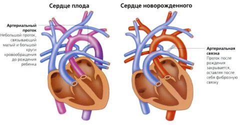 Сравнение сердца плода и новорожденного