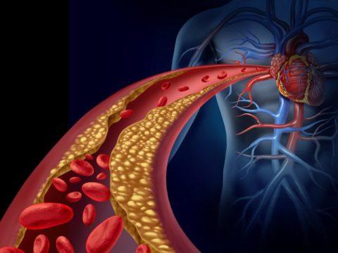 Стентирование – операция, помогающая бороться с атеросклерозом коронарных артерий