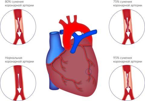 Степень сужения артерий определяет возможности лечения