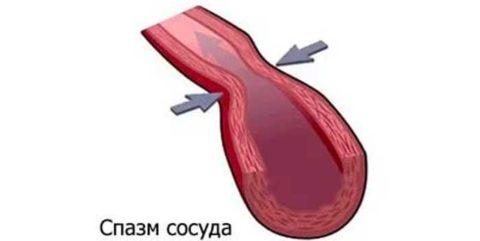 Просвет артерии значительно сужается