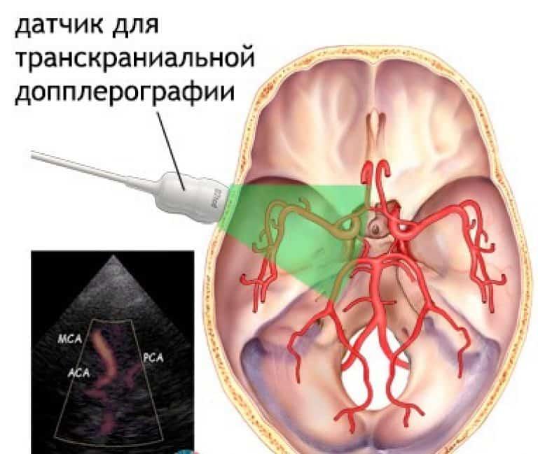 Дуплекс брахиоцефальных и транскраниальных