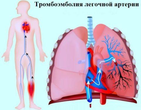 ТЭЛА – опасное заболевание, поэтому его профилактика очень важна