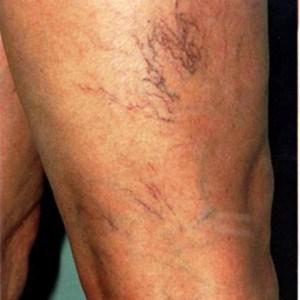 Уплотнение и гиперемия кожи над местом поражения