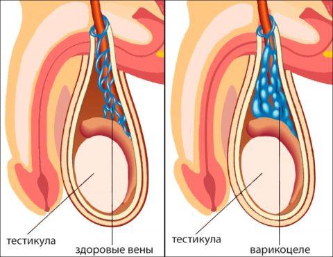 Воспаление вен семенного канатика