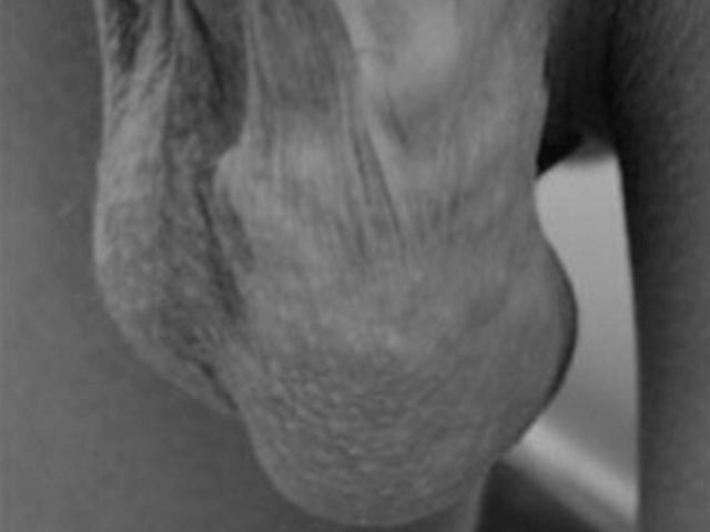 Заболевание 3 степени. На фото видны варикозные вены.