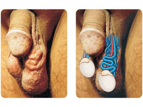 На фото схематически показанные воспаленные вены