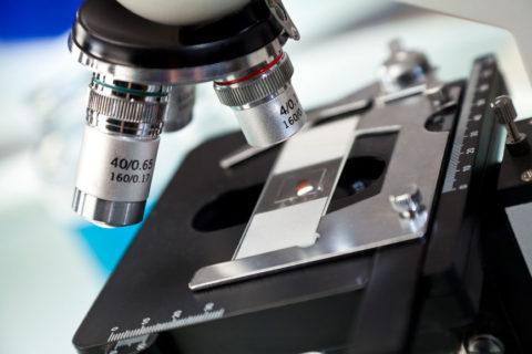 Варикоцеле негативно влияет на спермограмму
