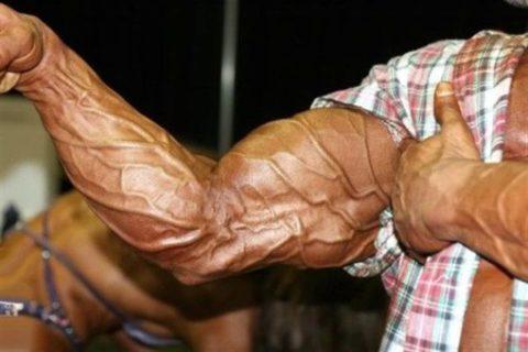 ВРВ рук у тяжелоатлета