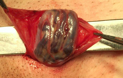 Выделение семенного канатика (видны расширенные вены)