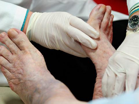 Выявить нарушения кровообращения специалист может еще на стадии осмотра