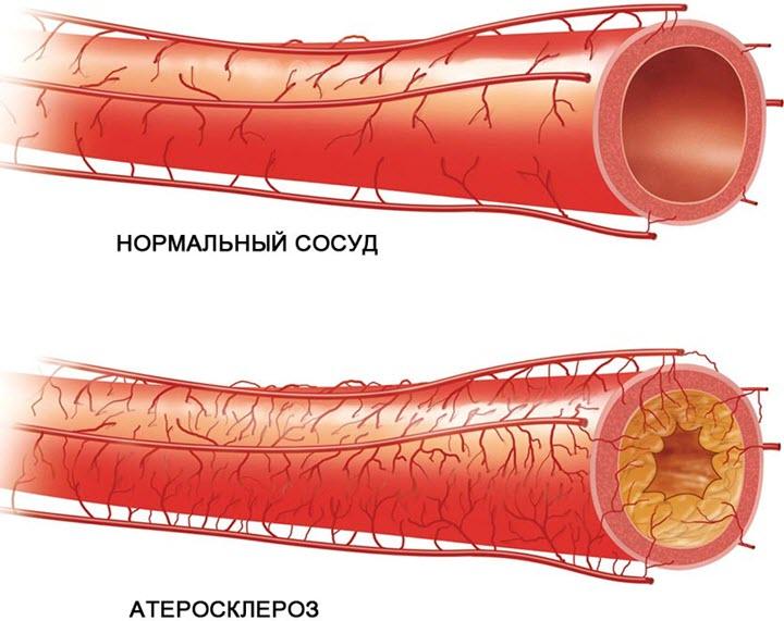 Просвет артерии заметно сужен