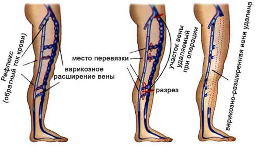 Можно ли бегать при варикозе вен на ногах - рекомендации врачей