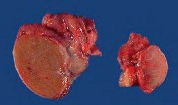 Деградация тестикулярных тканей