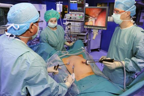 Эндоскопия (лапароскопия)