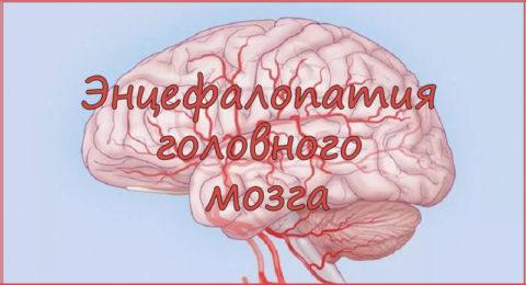 Патология обусловлена деградацией нервных клеток