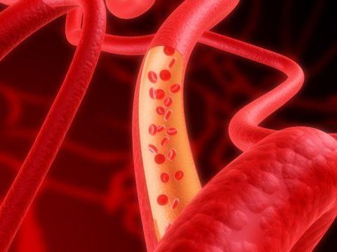 Фото: Атеросклеротическое повреждение стенок сосудов сердца