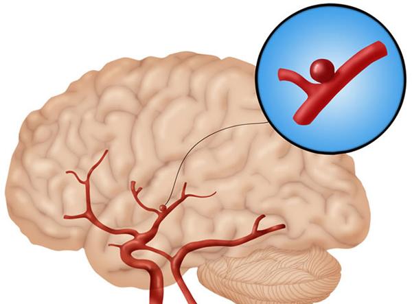 Расширение сосудов головного мозга и улучшение кровообращения