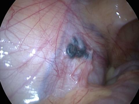 Фото яичковой вены пораженной варикозом
