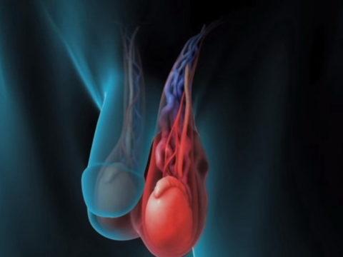 Гипертермия пагубно влияет на сперматогенез