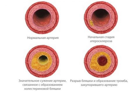 Холестерин – главный врач сосудов