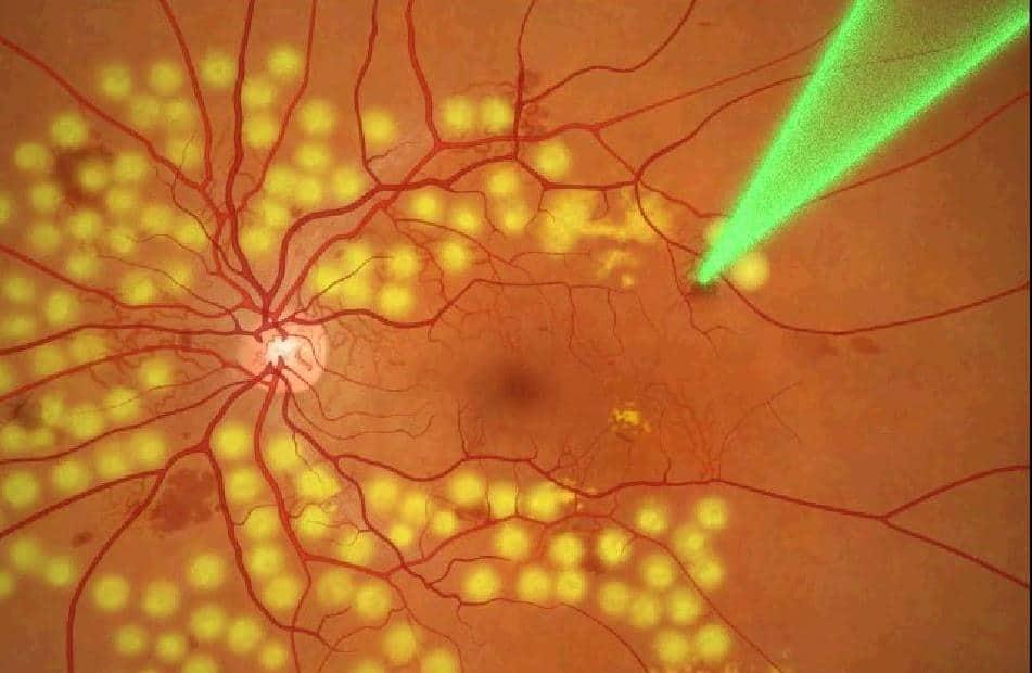 Лазерная коагуляция - один из методов лечения