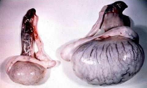 На фото показана разница между нормальным и больным яичком