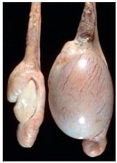 Нормальное и атрофированное яичко