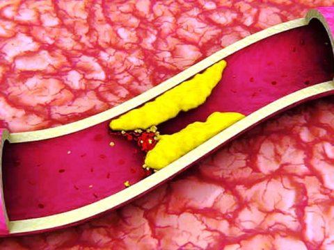 Образование холестерина в полости сосудов ведет к их закупорке и нарушению процессов кровообращения, что наглядно продемонстрировано на фото.