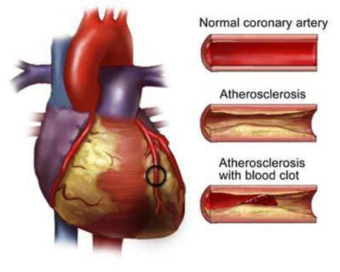 Отложение холестерина – главная причина развития заболеваний сосудов и сердца.