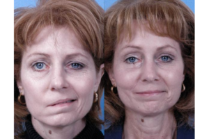 На фото – пациентка с инсультом (слева – до начала лечения, справа – после)