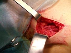 Полостная операция по Иваниссевичу