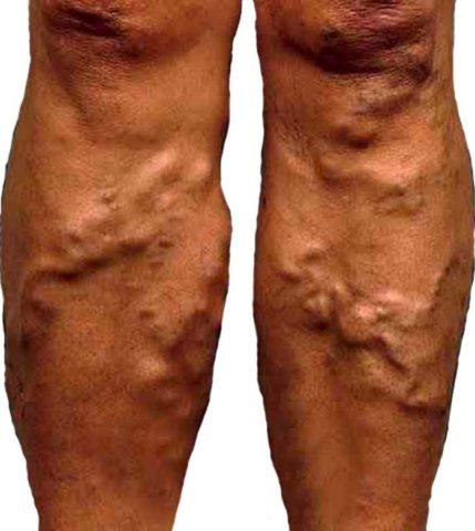 Поражены две ноги
