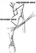 При реваскуляризации на место яичковой пришивается надчревная вена.