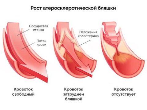 Пример развития бляшки