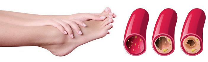 Пример закупорки артерии