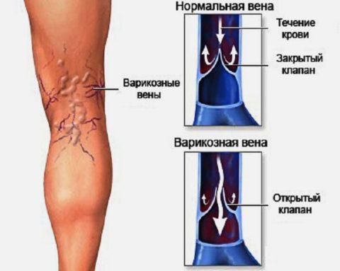 Пример здоровой и больной вены
