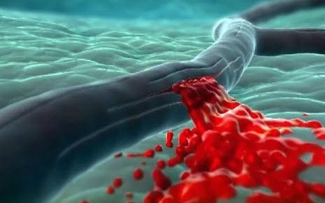 Разрыв артерии при инсульте