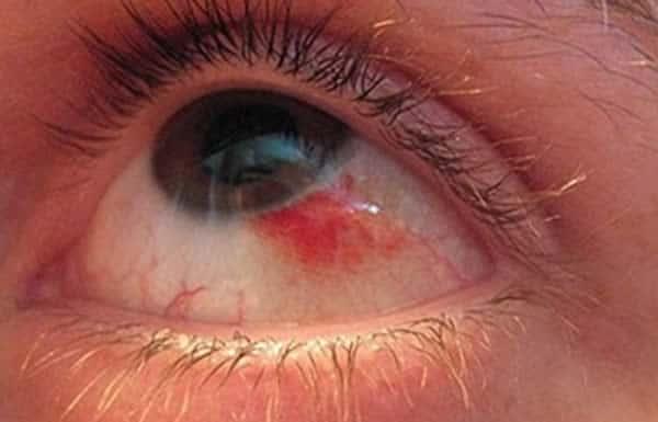 Разрыв артерии и кровоизлияние в глаз