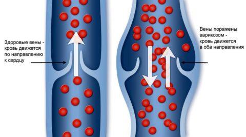 Рефлюкс венозной крови