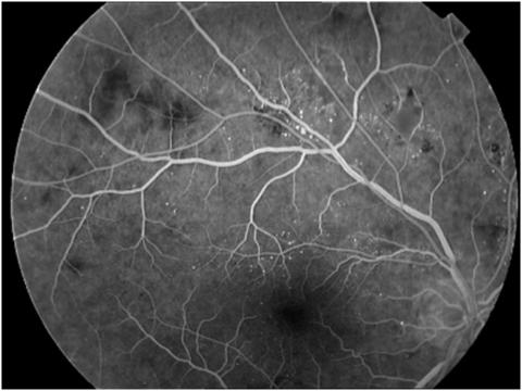 Результаты ангиографии сетчатки глаза