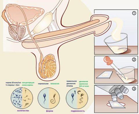 Схема сдачи и анализа спермы (спермограммы)