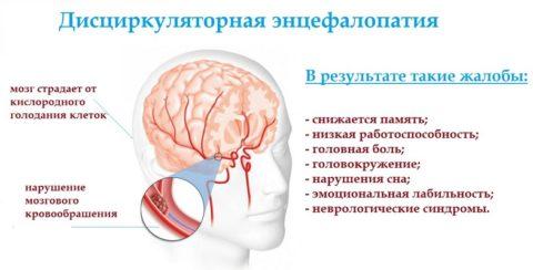 Неврологические симптомы