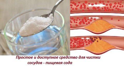 Средство, позволяющее быстро очистить сосуды