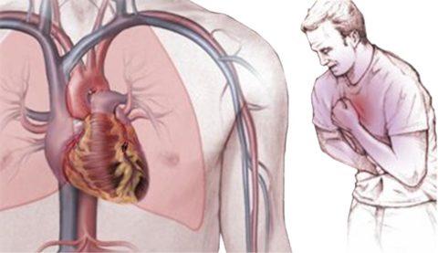 Стенокардия – следствие ишемии тканей сердца