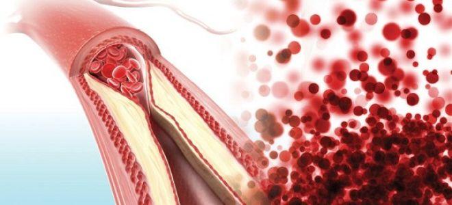 Наблюдается сужение диаметра артерии
